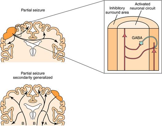 Treatment of Seizure Disorders | Clinical Gate