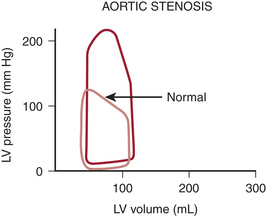 chronic aortic stenosis pressure volume loop pictures to