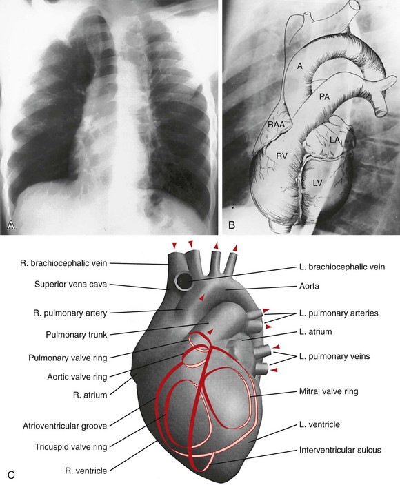 Radiology Of The Heart Plain Film Imaging And Diagnosis Clinical Gate