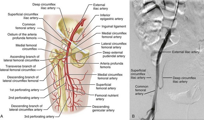 Arterial Anatomy of the Pelvis and Lower Extremities | Clinical Gate