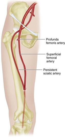 sciatic artery Gallery