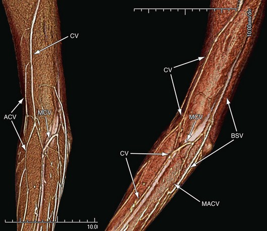 venous anatomy of the extremities | clinical gate, Cephalic vein