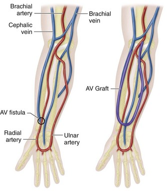 hemodialysis fistulas | clinical gate, Cephalic vein