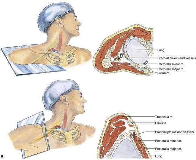 Infraclavicular Block | Clinical Gate