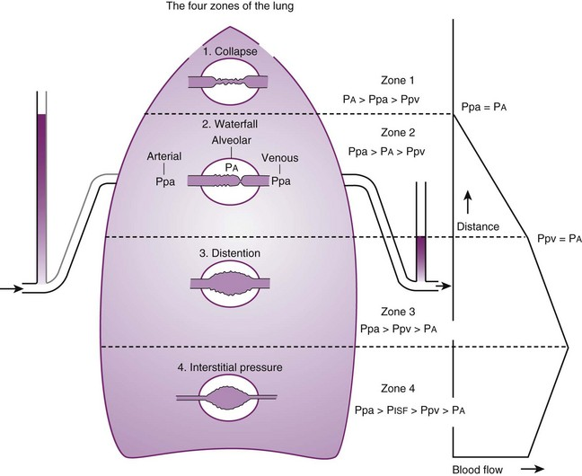 Physiology of the airway clinical gate figure 5 1 schematic diagram showing the distribution of blood flow in the upright lung in zone 1 alveolar pressure pa exceeds pulmonary artery pressure ccuart Images