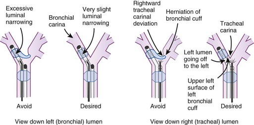 Separation of the Two Lungs: Double-Lumen Tubes, Endobronchial ...