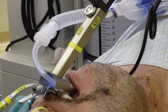 Anesthetic and Airway Management of Microlaryngeal Surgery