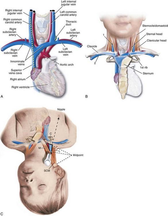 Subclavian Central Line Anatomy Choice Image - human body anatomy