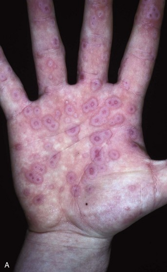 Approach To The Adult Rash Clinical Gate