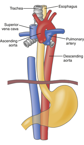 Aneurysms And Dissections Clinical Gate
