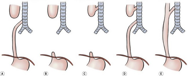 Esophageal Atresia and Tracheoesophageal Fistula Malformations ...