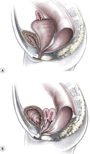 Nursing intervention for imperforate anus