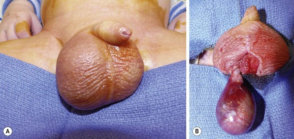 testicular torsion. figure 52-2 (a) shortly after birth, this newborn was found to have an enlarged and erythematous right hemiscrotum. it unclear whether or not the testicular torsion