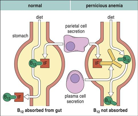 Autoimmunity   Clinical Gate