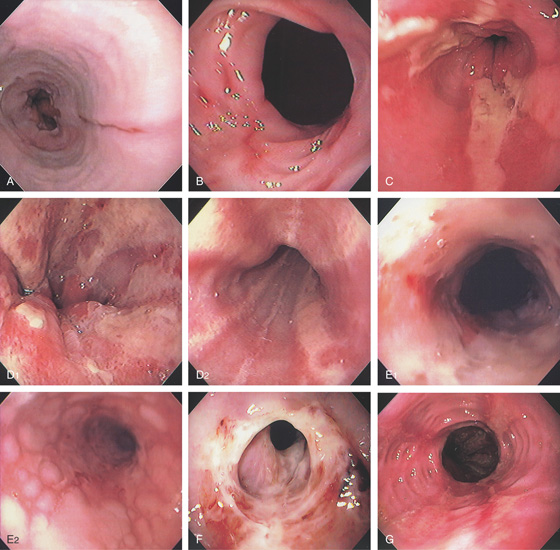 market report gastroesophageal ge junction carcinoma Bone metastasis in ge junction adenocarcinoma name esophageal, cardiac and ge junction carcinoma of gastro -esophageal junction - case report.