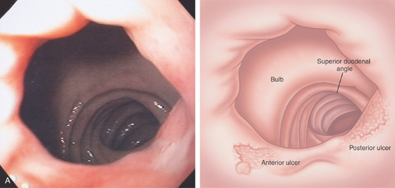 duodenum and small bowel | clinical gate, Human Body