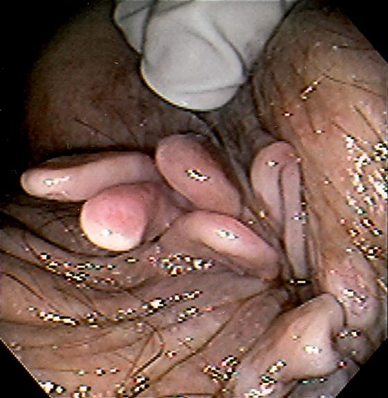Large skin tags anus