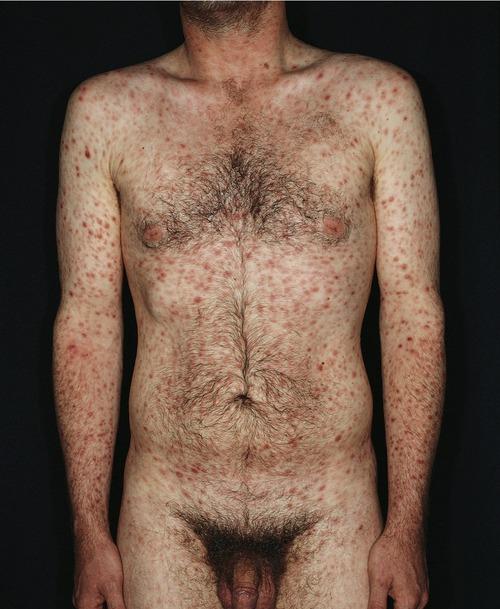 syphilis-pictures-on-females-black-prosoners-porn