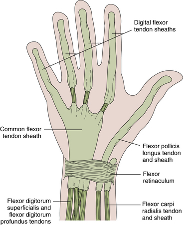 The Wrist And Hand Clinical Gate