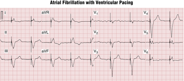 ... pacing with a single lead; VVIR, single-chamber ventricular pacing