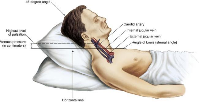 jugular vein pressure - 650×335