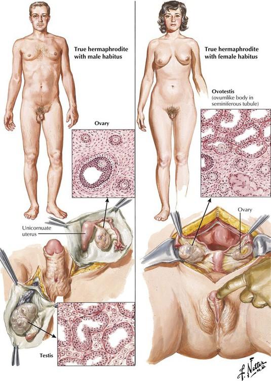 hot-pantyhose-clinical-hermaphrodite-video-violent-sex