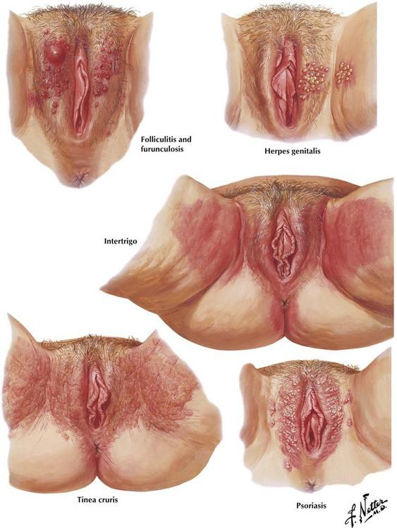 Veins clitoral varicose vulva