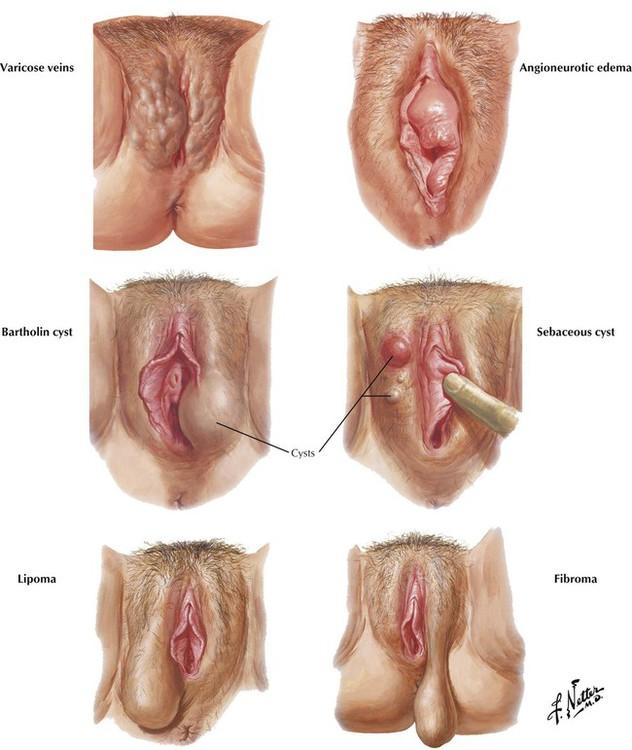 Reasons of irritated clitoris