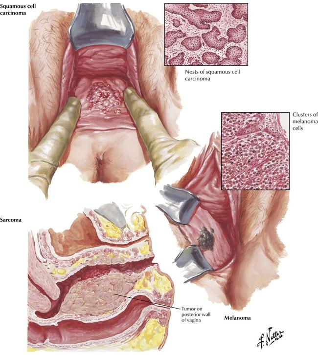 Vaginal cysts: MedlinePlus Medical Encyclopedia