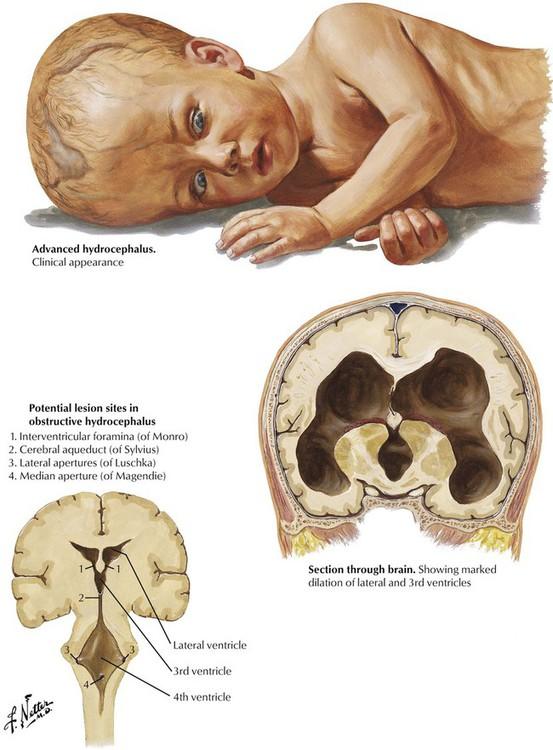 Спутанность Сознания При Умеренной Внутренней Гидроцефалии