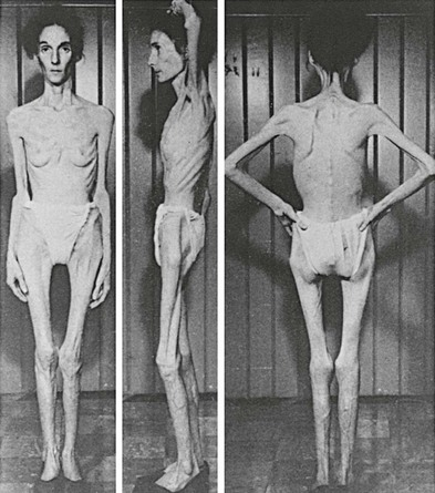 Figure 4 1 Extreme Cachexia In An Anorexia Nervosa Patient From Bliss El Branch Chh Its History Psychology And Biology