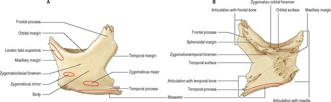 Zygomatic Bone Face and scalp clinical gate