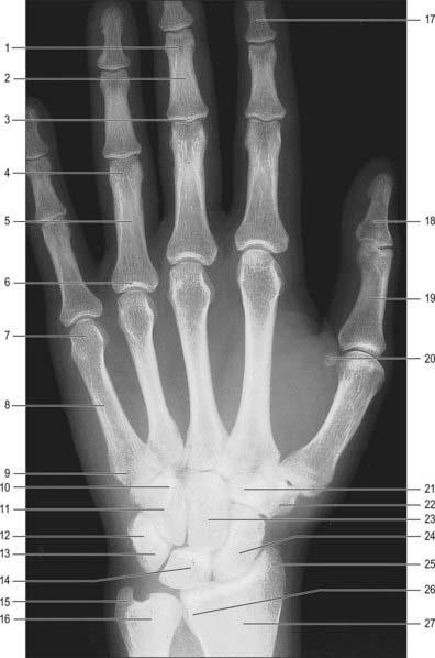 Cyst ulnar styloid thumb joint fucking sexy teacher