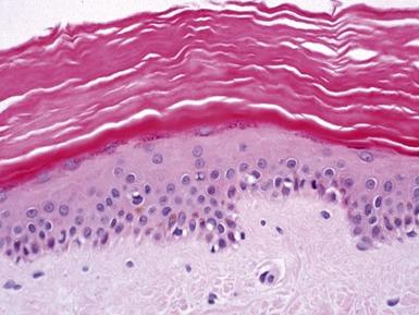 Erythema Toxicum Neonatorum Histology