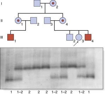 Screening for Genetic Disease | Clinical Gate