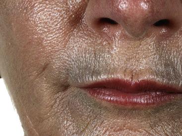 advair and skin rashes