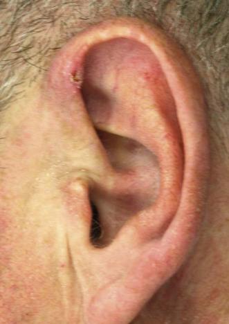 Chondrodermatitis nodularis helicis chronicus | Clinical Gate