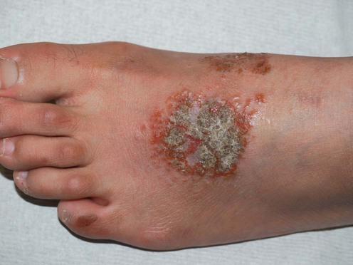 Allergic Contact Dermatitis - skinsight