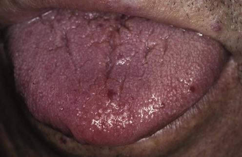Hereditary hemorrhagic telangiectasia | Clinical Gate