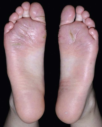 Think, that plantar dermatitis in adults thank