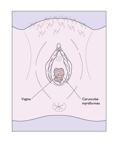 Vulva pix anatomy