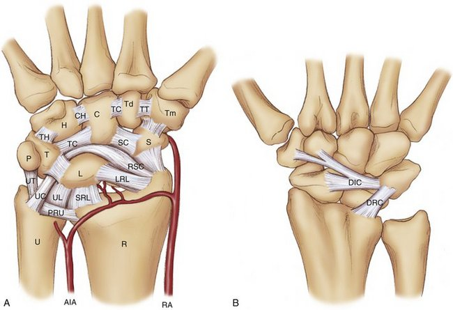 Modified Brunelli Tenodesis For The Treatment Of Scapholunate
