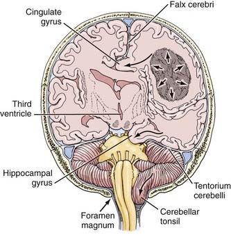 polskisport | pictures of cingulate gyrus, Cephalic Vein