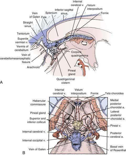 Großzügig Velum Interpositum Anatomie Fotos - Anatomie Von ...