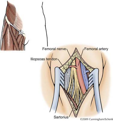 nerve injuries of the lower extremity | clinical gate,