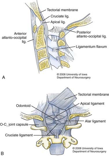 Evaluation And Management Of Craniocervical Dissociation Clinical Gate