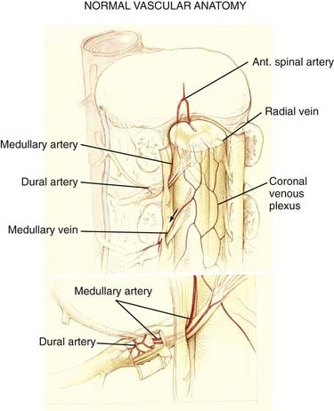 Spinal Vascular Malformations | Clinical Gate