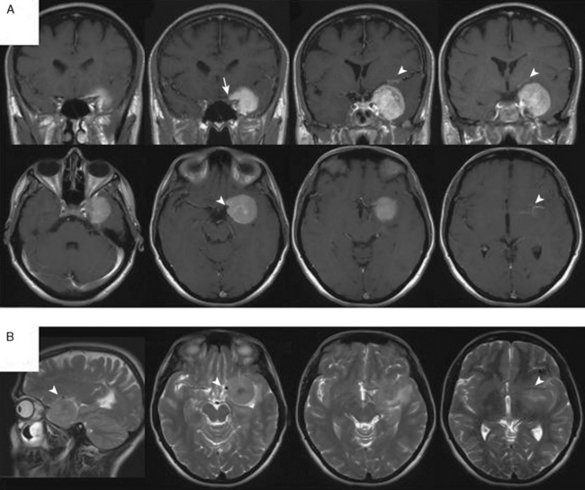 sphenoid wing meningiomas | clinical gate, Human Body