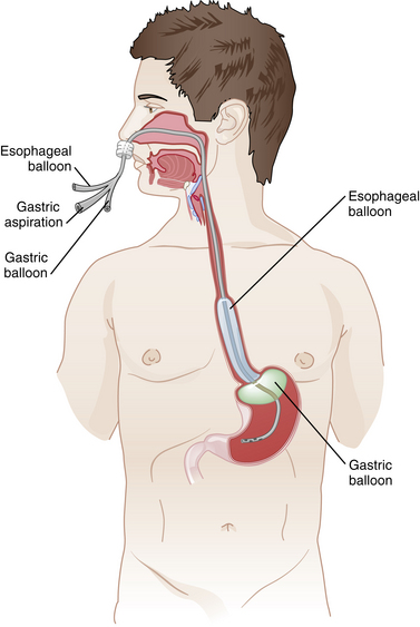 104: Esophagogastric Tamponade Tube | Clinical Gate