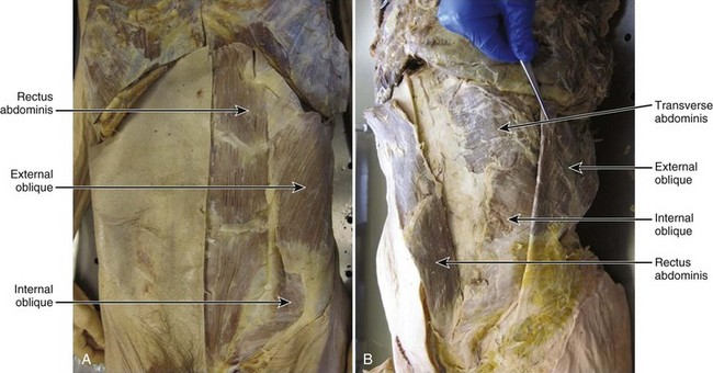 Anatomy And Mechanics Of The Abdominal Muscles Clinical Gate